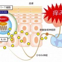 アトピー性皮膚炎のかゆみを引き起こす原因タンパク質を特定 九州大学が発表