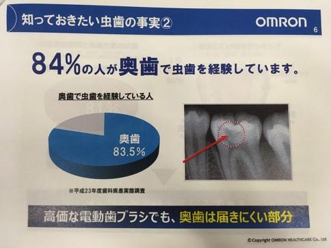 食事後すぐに歯磨きはNG?普通の歯ブラシと何が違う?電動歯ブラシの正しい使い方@オムロン07